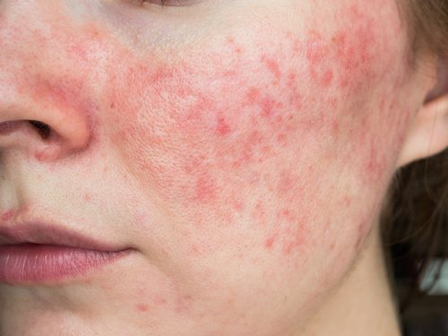 How to Manage Rosacea The Right Way